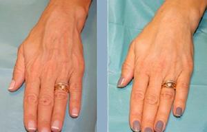 Инновационный комплект «Reneall-HAND» - восстановление кожи кистей рук